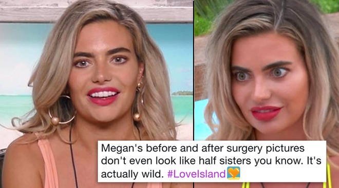 Megan Love Island Plastic Surgery Before After