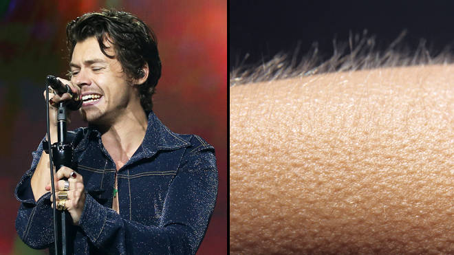 If music gives you goosebumps, your brain might be more special than others