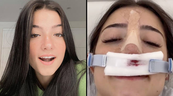 Charli broke her nose back in August 2019 and has struggled with breathing issues ever since.