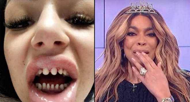 Dentists are warning against veneers after teeth shaving trend goes viral on TikTok