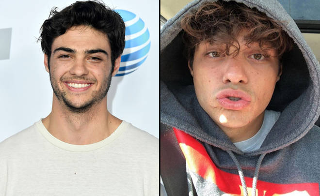 Noah Centineo attends iHeartRadio's KIIS FM Wango Tango by AT&T at Banc of California Stadium on June 2, 2018 in Los Angeles, California/duck lips selfie