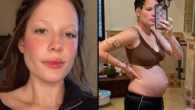 Halsey shares photos of her body after giving birth to combat postpartum body stigma