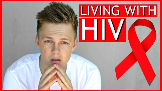 Caspar Lee HIV