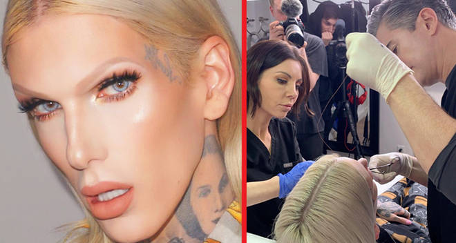 jeffree star botched surgery