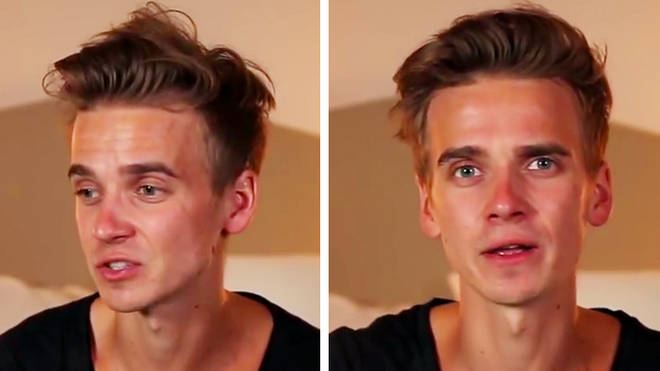 Joe Sugg acne video