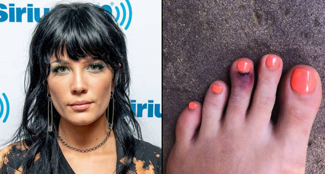 Halsey at Sirius FM/her broken toe