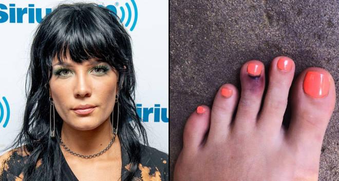 Halsey at Sirius FM/her broken toe