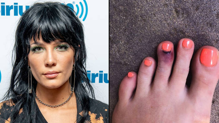 Halsey broke her toe trying to save a butterfly and it looks SO painful -  PopBuzz